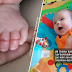 Ibu beri amaran selepas bayinya berusia 10 minggu nyaris hilang jari kaki disebabkan rambutnya