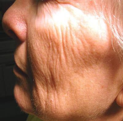 Remove Skin Wrinkles