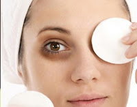 Praktische Methoden Augenringe loszuwerden
