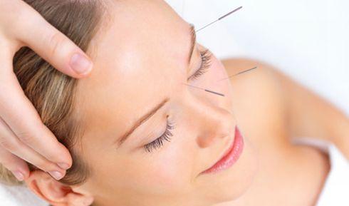 10 doenças que a acupuntura pode tratar