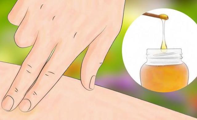 طريقة علاج لدغ الحشرات بالأعشاب