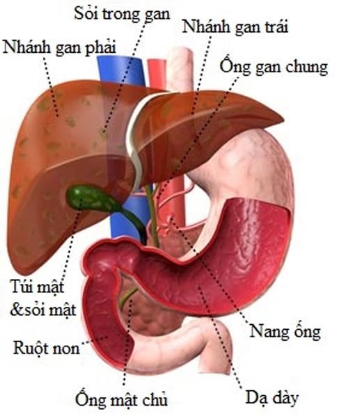 Bệnh sỏi gan và cách điều trị