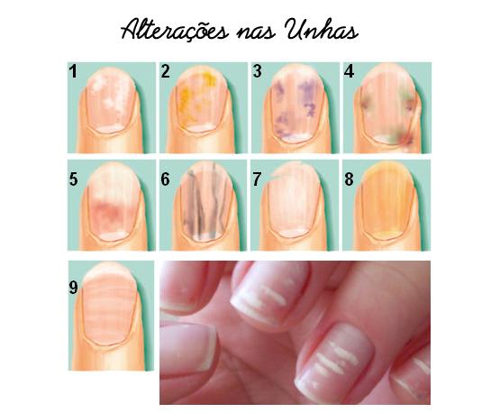 aparência das unhas e a saúde do organismo