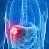 Jiwa yang Kuat Ditandai Liver Sehat