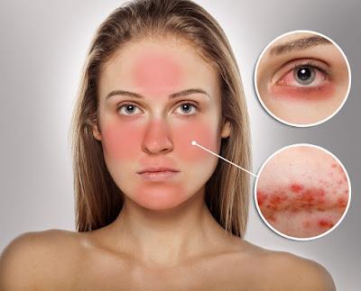 Remèdes maison pour traiter l'acné rosacée naturellement