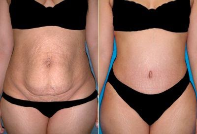 Achieve the Envious Abdominal Contour With Tummy Tuck Surgery