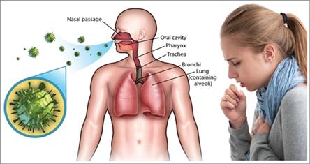 Cara Mengobati Infeksi Saluran Pernapasan Akut (ISPA) Secara Efektif Dan Cepat Tuntaskan Penyakit