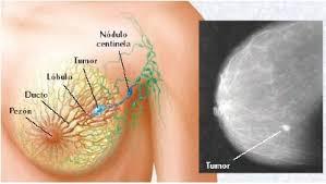 cancer-de-mama-sintomas-iniciais-fotos