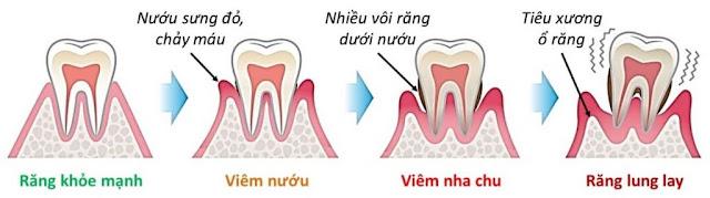 Nguyên nhân khiến răng bị lung lay