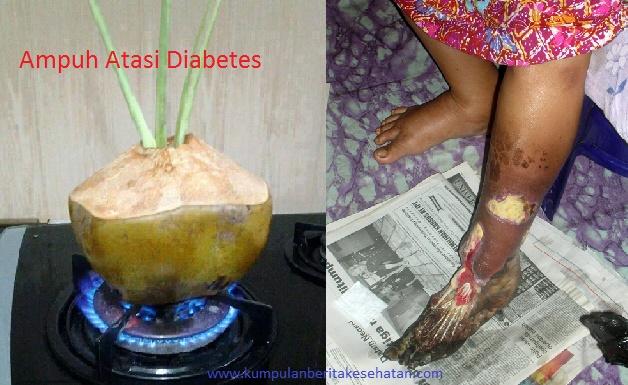 Obat Sakit Jantung Diabetes dan Darah Tinggi Yang Belum Banyak Diketahui