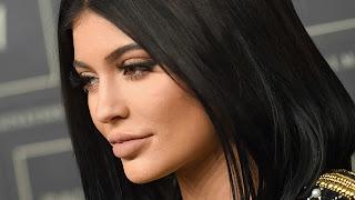 Kylie Jenner lips plastic surgery
