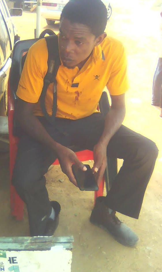 See Photos of a Man who survived a ghastly motor accident along airport road, Abuja