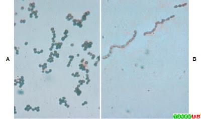 Gram stain of Streptococcus.