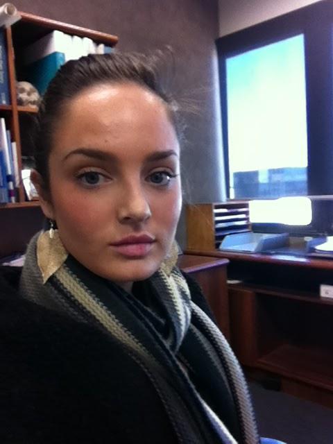 Chloe Morello: MY LIP INJECTION EXPERIENCE