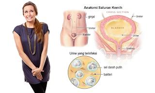 Mencegah Infeksi Saluran Kencing pada Wanita, 11 Cara Mengobati Infeksi Saluran Kemih Secara Tradisional, Pencegahan Infeksi Saluran Kemih, Mengobati Infeksi Saluran Kemih