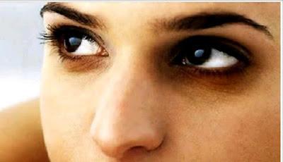 চোখের নিচের কালো দাগ কমাতে গ্রিন টি, Dark circles under the eyes to reduce the green tea