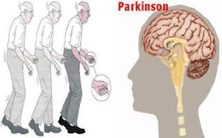 Bahaya Penyakit Parkinson dan Cara Mencegahnya