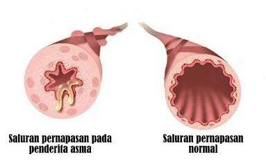 Saluran pernapasan menyempit karena asma