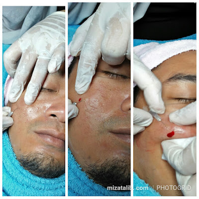 6 Kebaikan Dermapen , rawat kulit tanpa laser dan bahan kima bahaya, rawatan semulajadi , beauty is pain. Dermapen membaiki tekstur Kulit Muka di Dr Medispa and wellness. Dr Medispa and Wellness