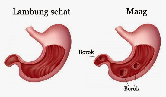 Gejala Penyebab Dan Pengobatan Maag Gastritis Medkes