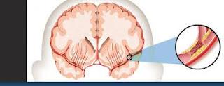 Tips Mengobati Stroke Masih Ringan, apa penyebab penyakit stroke ringan?, Bagaimana mengobati penyakit stroke ringan?