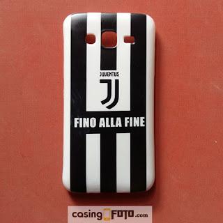 casing jersey Juventus logo baru