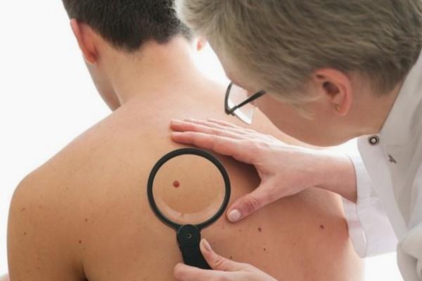 5 Jenis Kanker Kulit dan Cara Mencegahnya