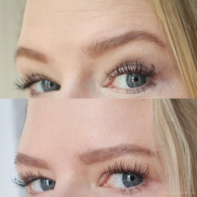 Botox in der Stirn - ja oder nein - Erfahrungsbericht - Vorher Nachher Vergleich