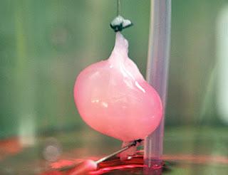 Rene creato in laboratorio: trapianto riuscito