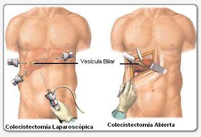 la enfermedad de la vesícula biliar puede causar disfunción eréctil