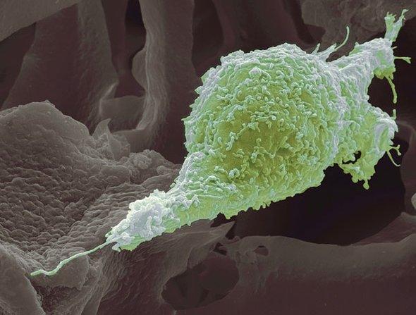 هل يمكن للخلايا السرطانية أن تتضاعف وتقوم بغزو الأنسجة السليمة في نفس الوقت؟