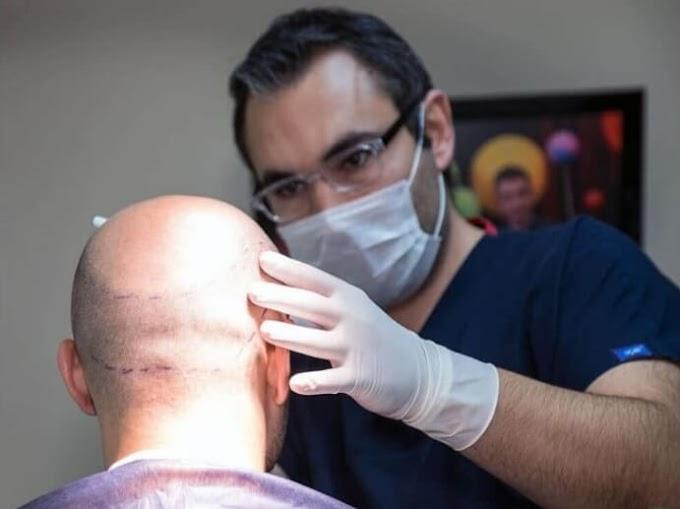 ما افضل مراكز زراعة الشعر في تركيا ؟