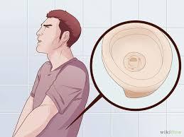 cara pengobtan untuk kencing keluar nanah dari kelamin