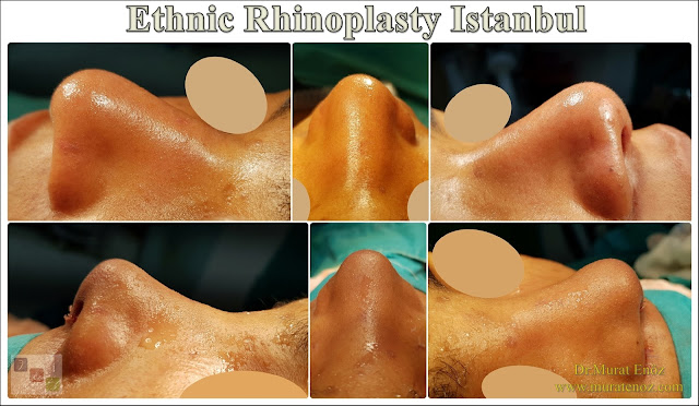 Ethnic Rhinoplasty Istanbul – Dr.Murat Enoz – Nose job in Istanbul – Nose surgery in Istanbul – Nose job in Turkey - Ethnic rhinoplasty Turkey - Ethnic rhinoplasty in Turkey - African American rhinoplasty - Ethnic expert nose job surgeon - Rhinoplasty surgeon in Istanbul - Black nose job - Rhinoplasty for ethnic nose - Rhinoplasty for African people - African American nose surgery – Rhinoplasty for African American Nose - Thick skin rhinoplasty - Rhinoplasty in istanbul