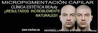 Micropigmentación capilar Valencia. CLÍNICA ESTÉTICA MARBELLA: Te ofrecemos los mejores especialistas para tatuaje capilar Valencia