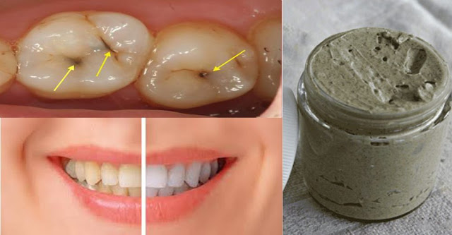 Heal Cavities, Gum Disease, And Whiten Teeth With This Natural Homemade Toothpaste – Holistic Living Tips