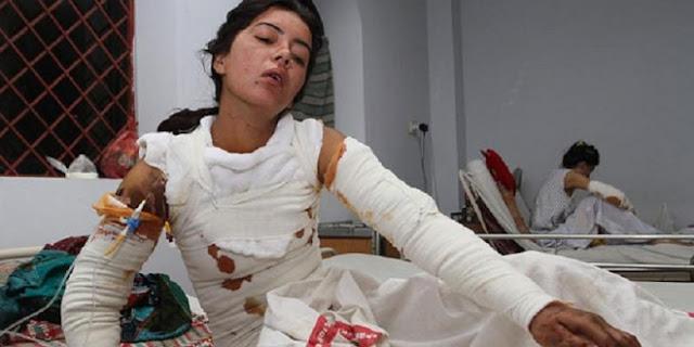 Kejam, Tolak Lamaran Nikah, Gadis Pakistan Tewas setelah Disiksa dan Dibakar