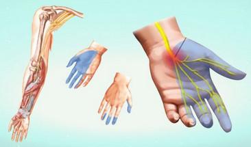 артроз артрит онемение