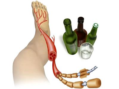 neuropatia alcoholica