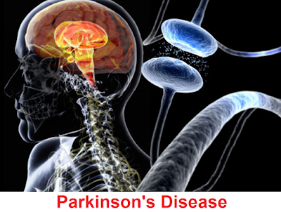 namely slowly die in people with Parkinson Parkinson's Disease: Signs And Symptoms, Diagnosis, Treatment And Prevention