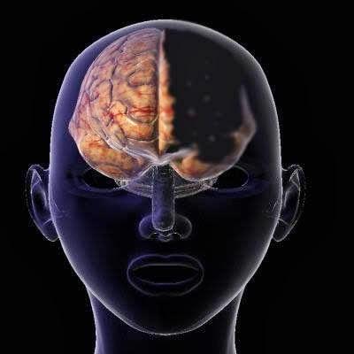 917c6fe72 امرأة تعيش بنصف دماغ!! سبحان الله!