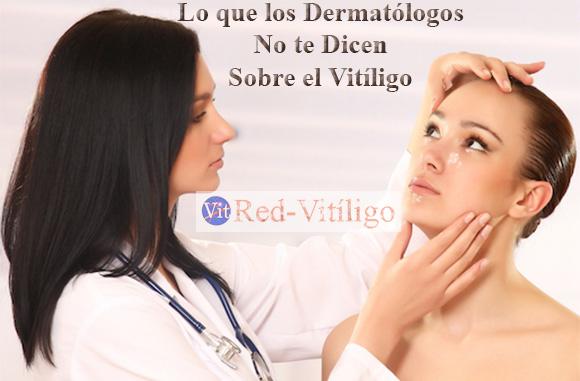 Lo que los Dermatólogos no te dicen sobre el Vitiligo