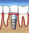 implante diente