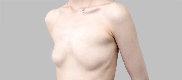 짱이뻐! - Finally Have Breast Through Teardrop Implant Wonjin Plastic Surgery Korea