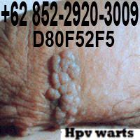 Obat kutil kemaluan kelamin tanpa operasi tanpa efek samping, mujarab, manjur, ampuh, meghilangkan, penghapus, penghilang, kutil kelamin pria, laki-laki, wanita, perempuan, Ibu hamil mengandung menyusui, penis vagina dalam luar, anus dubur, paha aman dan terbukti, BARANG DIJAMIN SAMPAI, 100% BERGARANSI. KESEMBUHAN DAN KEPUASAN KONSUMEN ADALAH PRIORITAS KAMI. Obat Kutil - untuk menyembuhkan kutil di kulit kemaluan kelamin yang aman & ampuh terbuktinya dapat menghilangkan kutil kelamin, obat kutil buat pada untuk pria laki-laki wanita perempuan Ibu hamil mengandung menyusui, obat kutil dikemaluan kelamin genital. 0852-2920-3009 BBM: D80F52F5