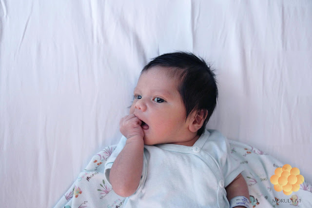 Morula IVF Pontianak, Spesialis Bayi Tabung dan Infertility. Foto hasil Bayi Tabung yang lucu.
