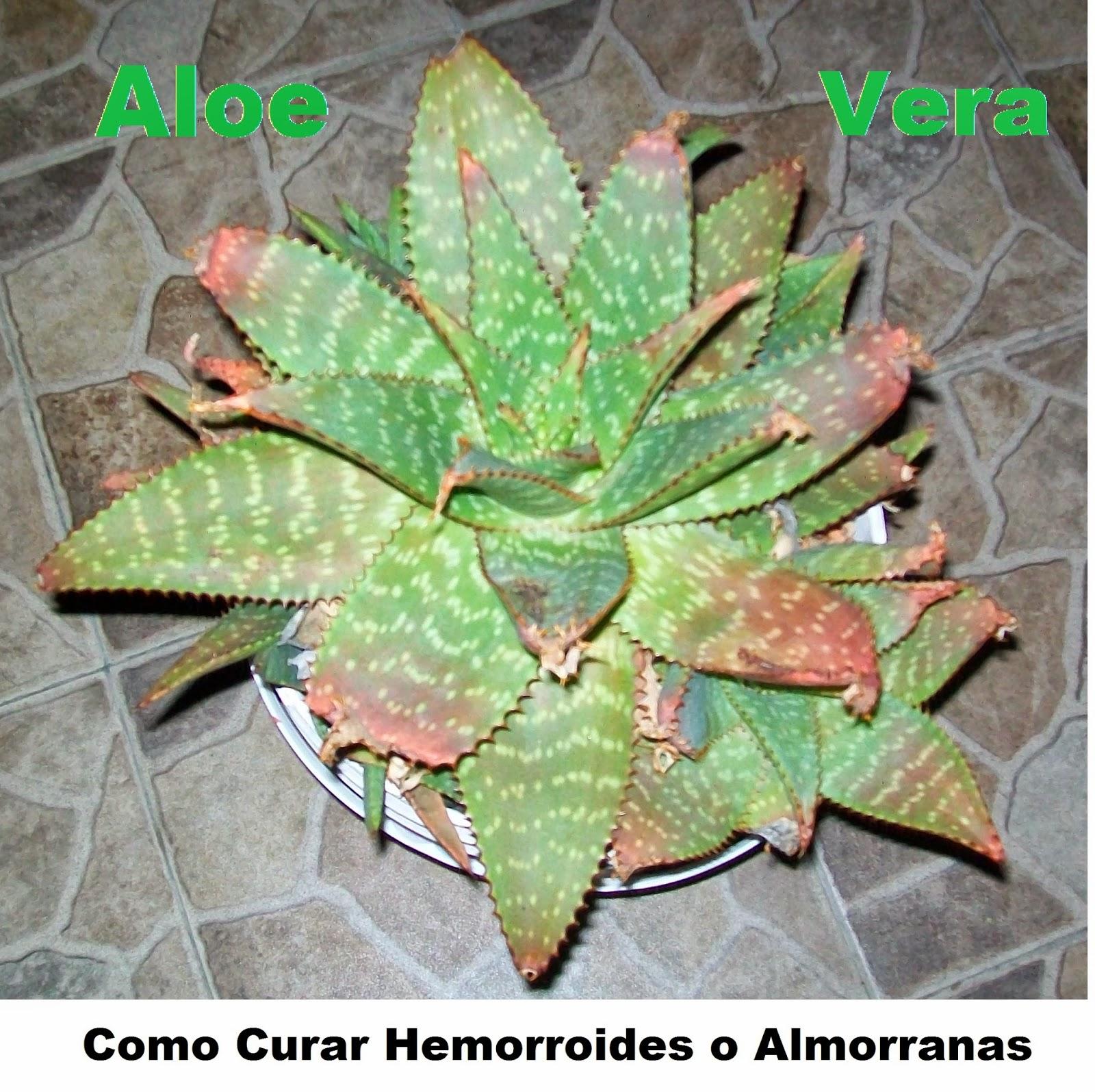 Como-Curar-Hemorroides-O-Almorranas-Con-Aloe-Vera-Y-Dieta-Saludable