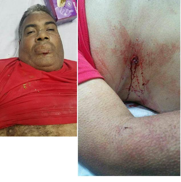 Matan hombre e hieren acompañante y lo despojan de una motocicleta en Barahona.