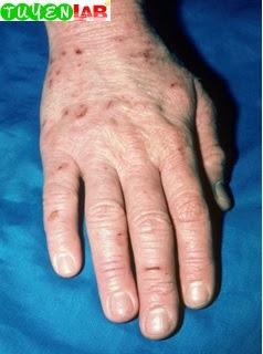 Fig. 5.10 Atopic dermatitis