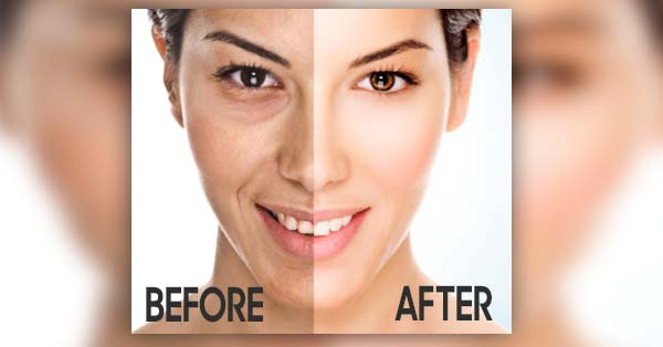 Naturally Whiten Your Skin Effectively Using Home Remedies
